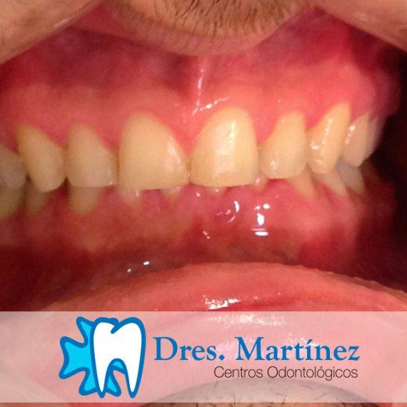 Corección-de-sobremordida-con-ortodoncia madrid