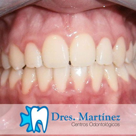Ortodoncia-adolescentes-madrid-y-ciudad-real-portada