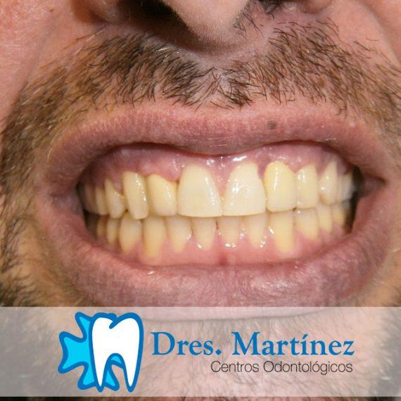 agenesia-dental-tratada-con-ortodoncia-dentistas-madrid