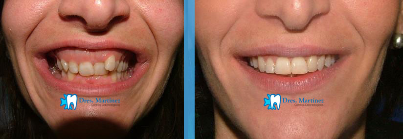ortodoncia madrid, ortodoncia ciudad real