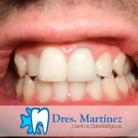 Corona de zirconio en diente necrosado por traumatismo dental