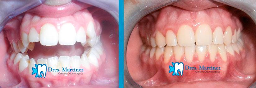 ortodoncia-en-adolescente-madrid-cuidad-real
