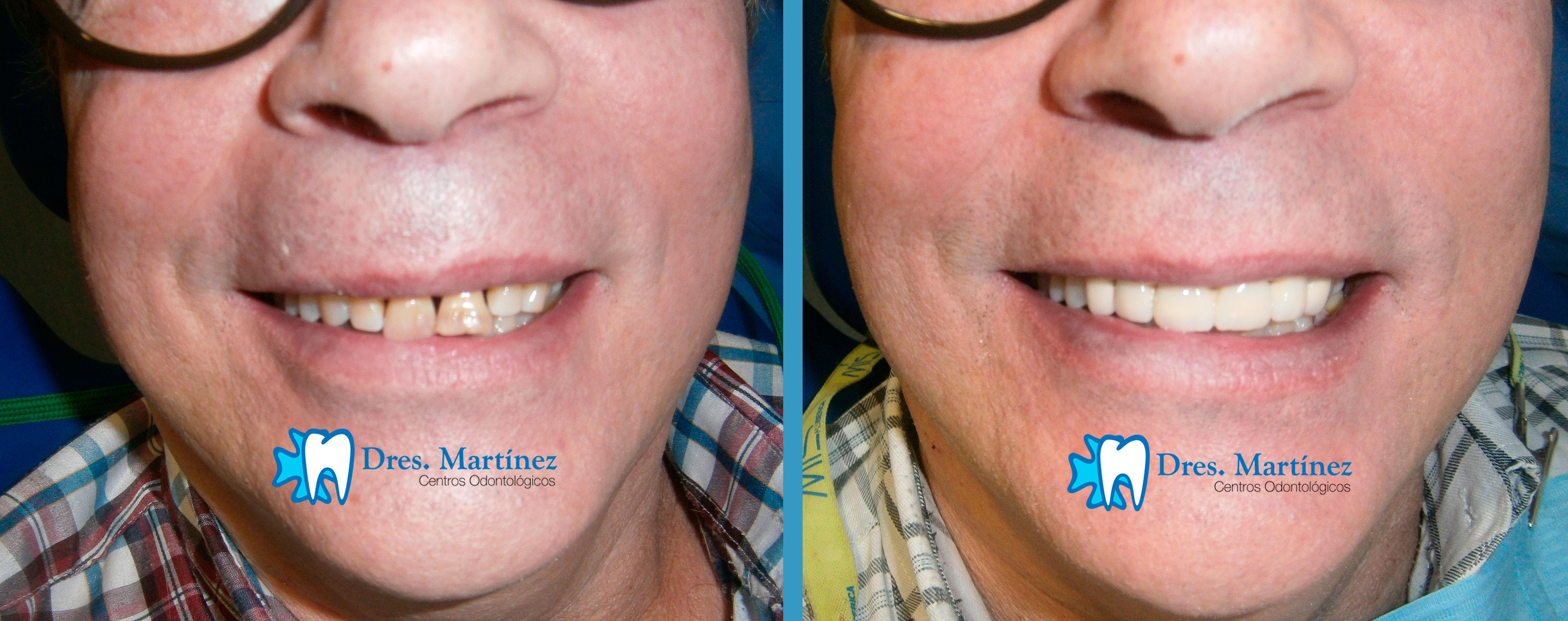 protesis dental madrid