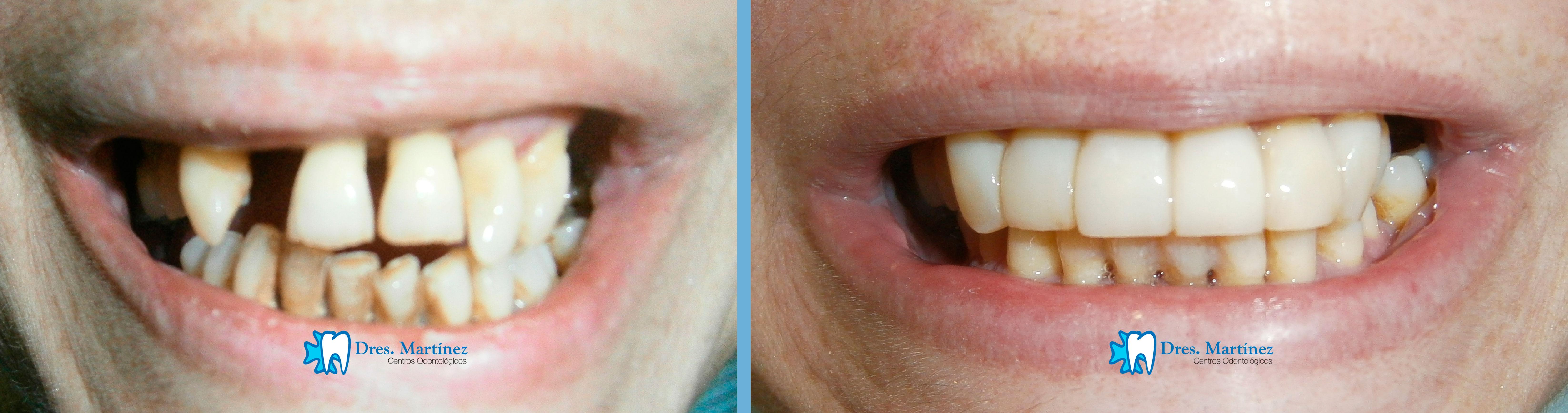 rehabilitacion-anterior-paciente-tratada-de-enfermedad-periodontal-previamente-con-posterior-puente