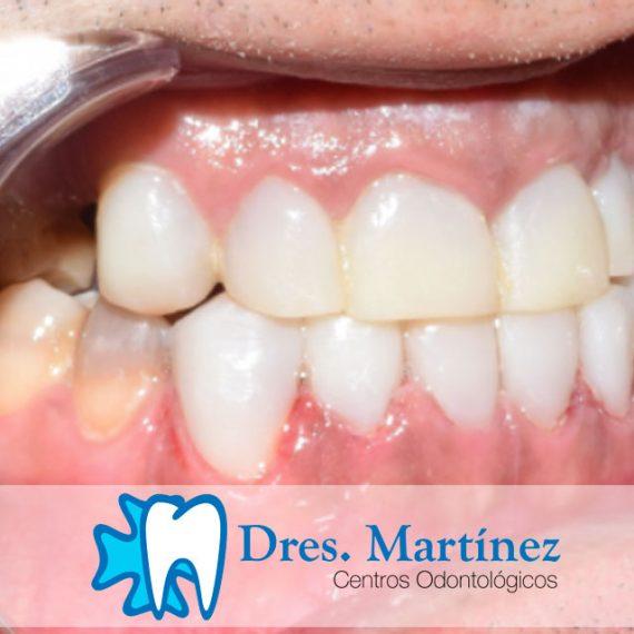 tinciones-por-tetraciclincas.-mock-dental,-simulacion-de-carillas-con-composite-previo-a-la-realizacion-de-carillas-de-porcelana-definitivas