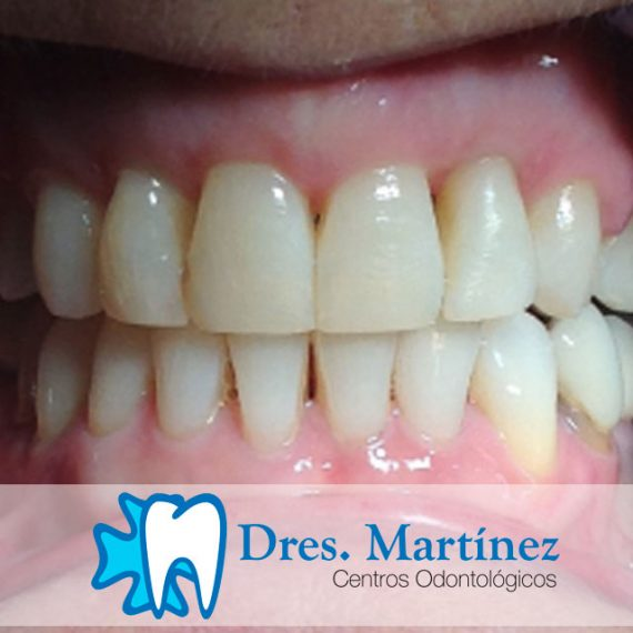Solución-afección-periodontal-y-ortodoncia-con-brackets-de-zafiro-madrid-ciudad-real