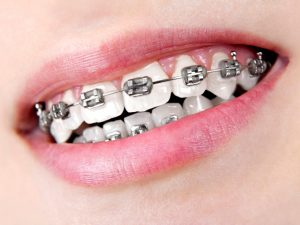 brackets-metalicos-madrid