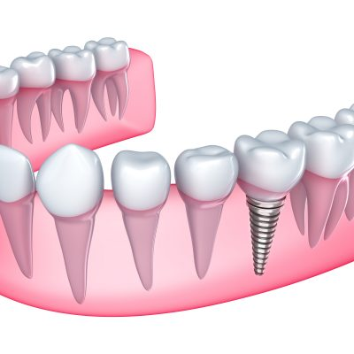 implantes-dental-madrid-ciudad real