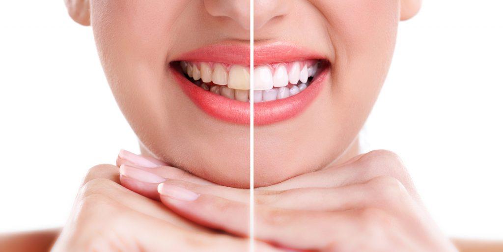 blanqueamiento dental madrid
