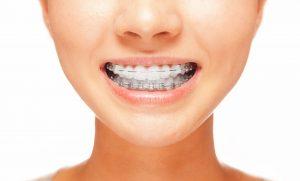 ortodoncia madrid