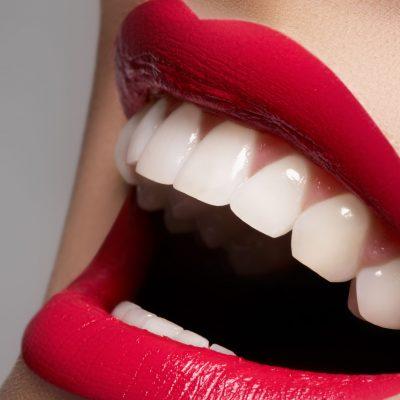 estetica-dental-madrid-ciudad-real