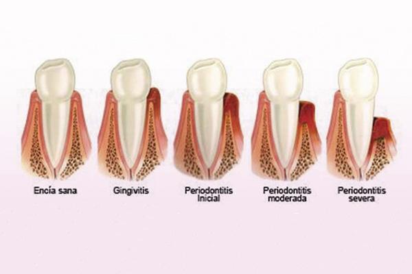 periodontitis madrid