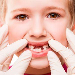 dentista niños madrid, dentista niños ciudad real