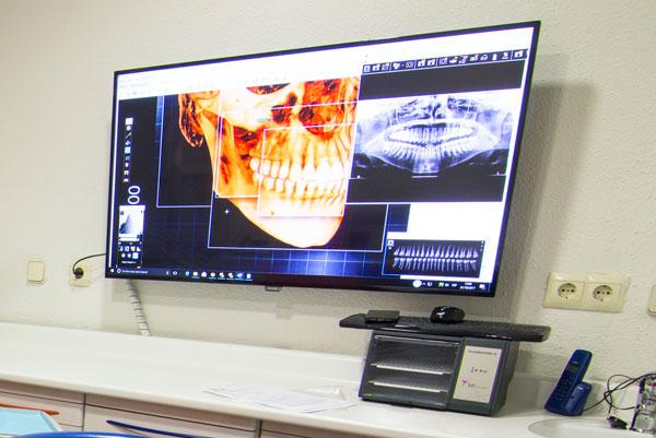 tratamientos-dentales-dentistas-madrid-y-ciudad-real