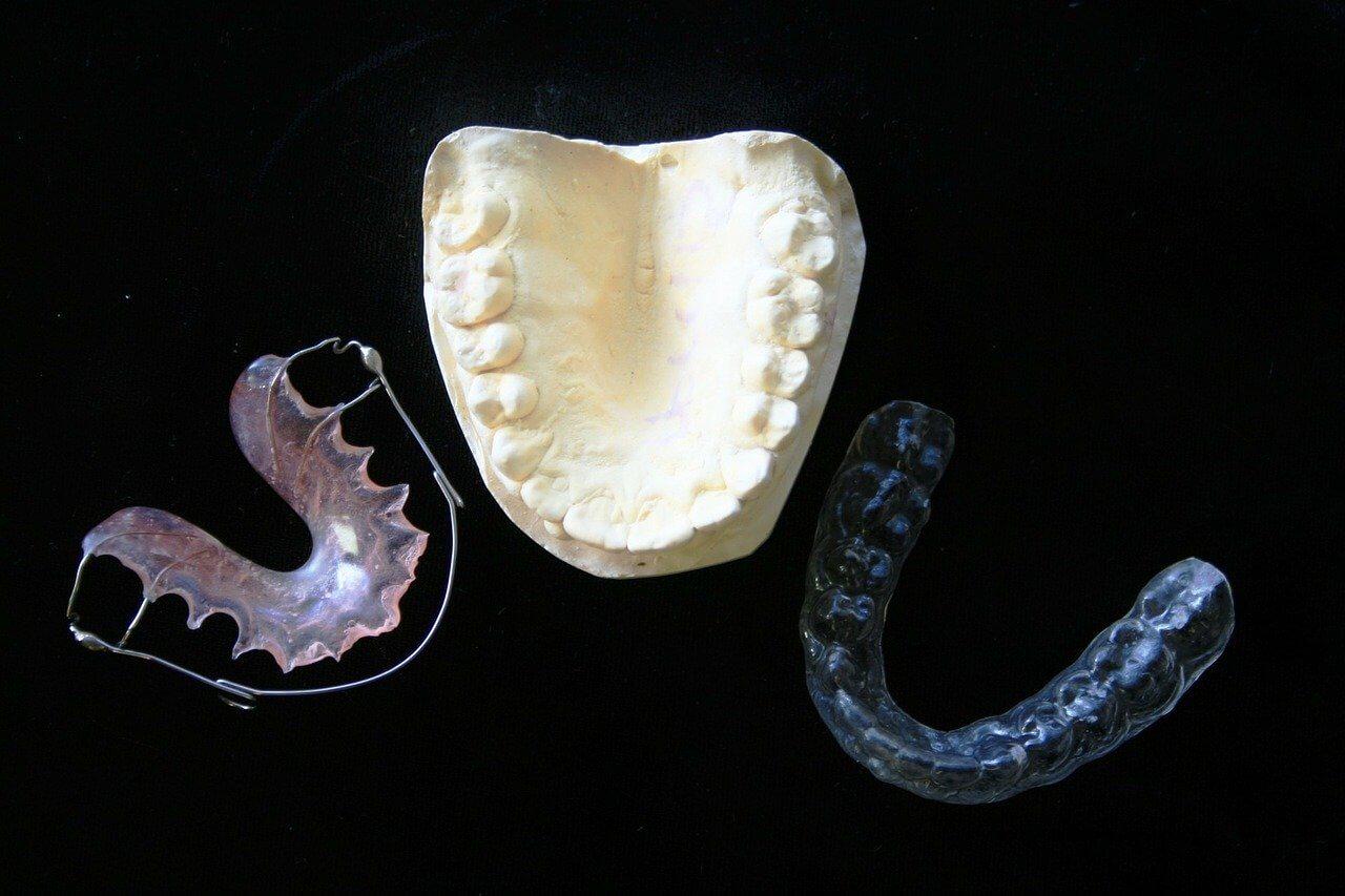 ortodoncia tradicional e invisible