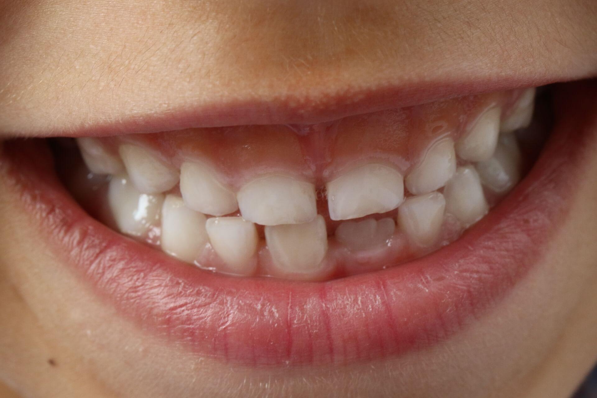 primera visita dentista hijo