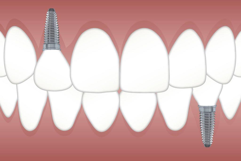 implantes dentales Valdebebas