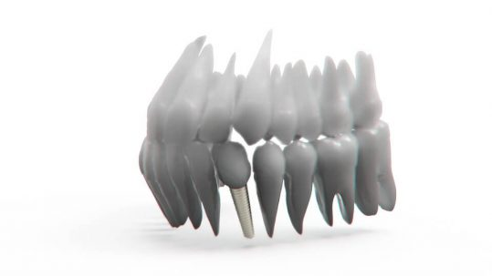 implantes dentales de inmediato