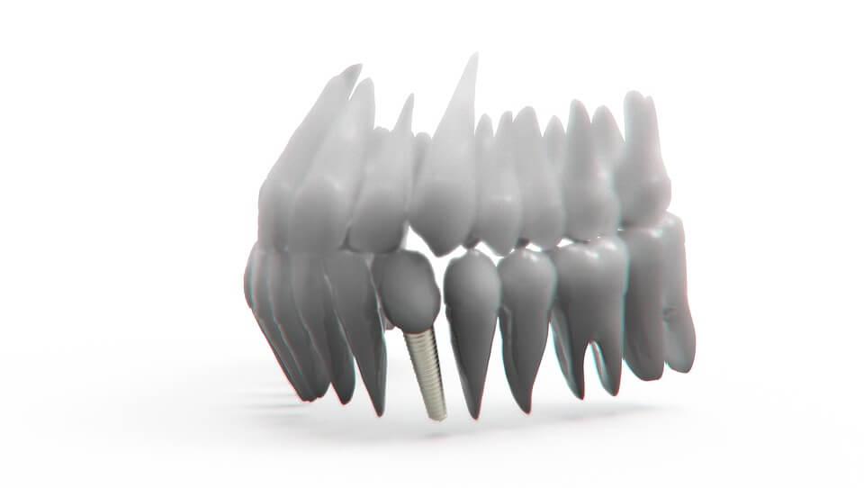 implantes dentales de inmediato