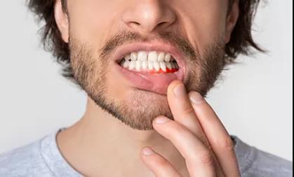 enfermedad periodontonitis